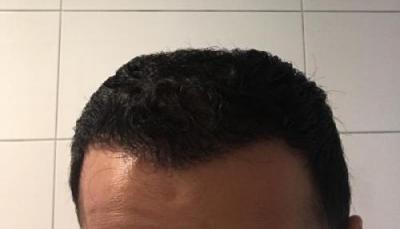 hair-implant-istanbul (20)