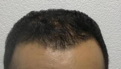 hair-implant-istanbul (21)