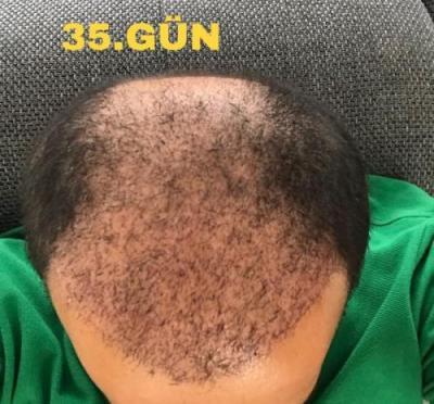 hair-implant-istanbul (3)