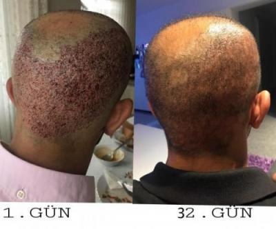 hair-implant-istanbul (4)