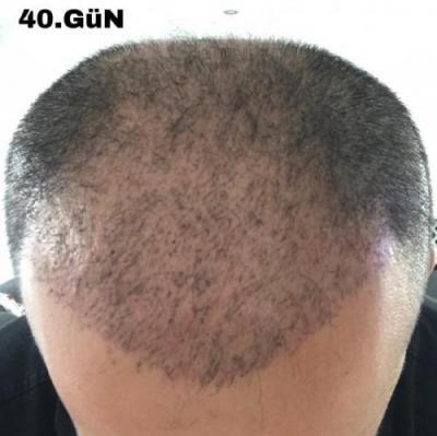 hair-implant-istanbul (5)