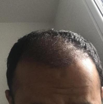 hair-implant-istanbul (7)