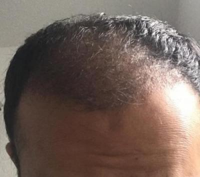 hair-implant-istanbul (8)