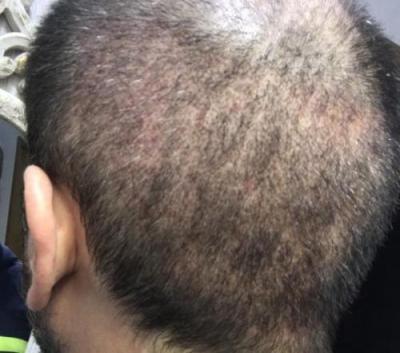 hair-implant-turkey-istanbul (10)