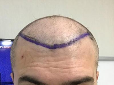 hair-implant-turkey-istanbul (11)