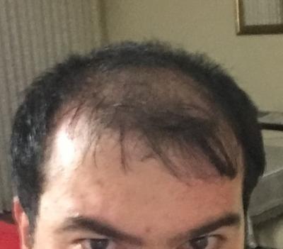 hair-implant-turkey-istanbul (12)