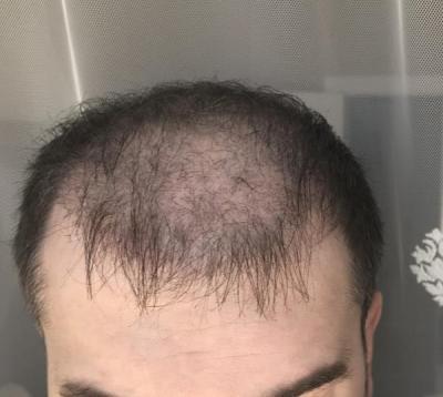 hair-implant-turkey-istanbul (15)