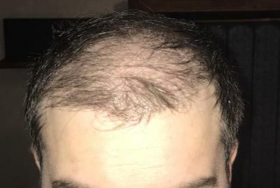 hair-implant-turkey-istanbul (16)