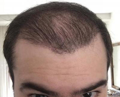 hair-implant-turkey-istanbul (17)