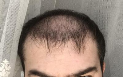 hair-implant-turkey-istanbul (18)