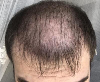 hair-implant-turkey-istanbul (19)