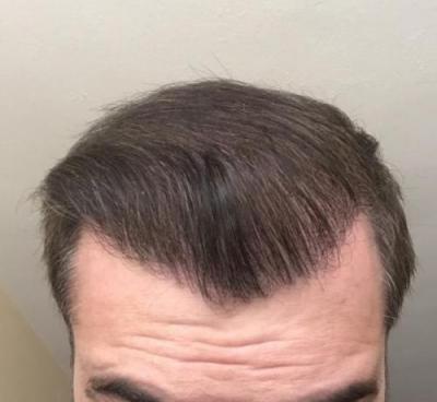hair-implant-turkey-istanbul (2)