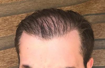 hair-implant-turkey-istanbul (20)