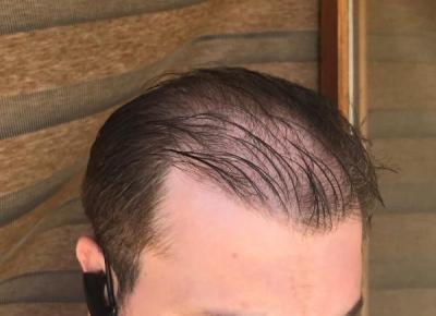 hair-implant-turkey-istanbul (21)