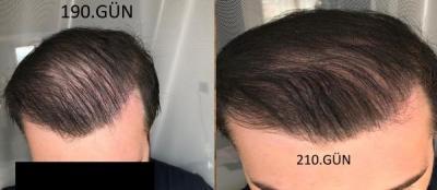 hair-implant-turkey-istanbul (25)