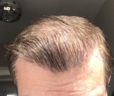 hair-implant-turkey-istanbul (28)