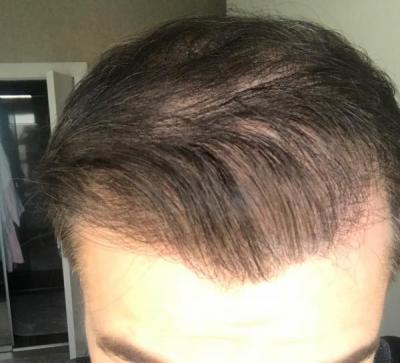 hair-implant-turkey-istanbul (29)