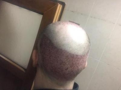 hair-implant-turkey-istanbul (3)