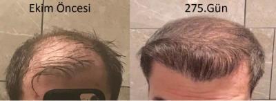 hair-implant-turkey-istanbul (30)