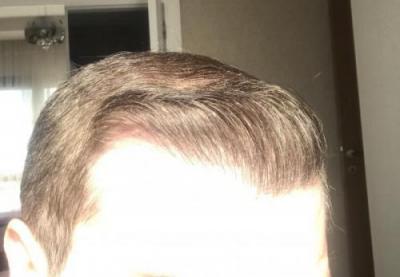 hair-implant-turkey-istanbul (34)