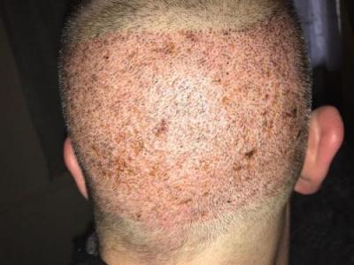 hair-implant-turkey-istanbul (4)