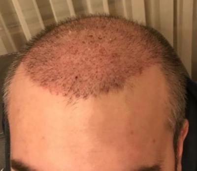 hair-implant-turkey-istanbul (5)
