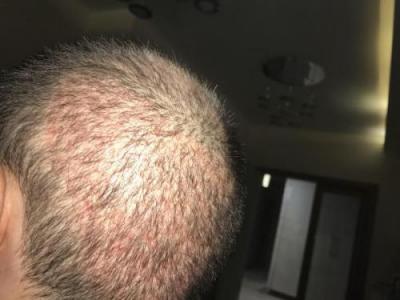 hair-implant-turkey-istanbul (6)