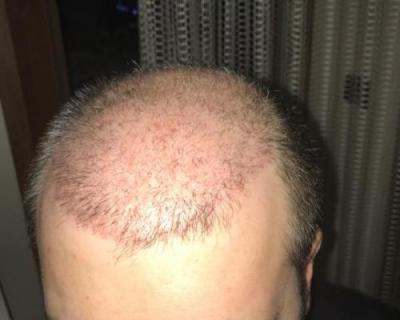 hair-implant-turkey-istanbul (7)