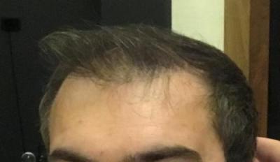 hair-implant-turkey-istanbul (8)