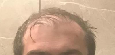 hair-implant-turkey-istanbul (9)