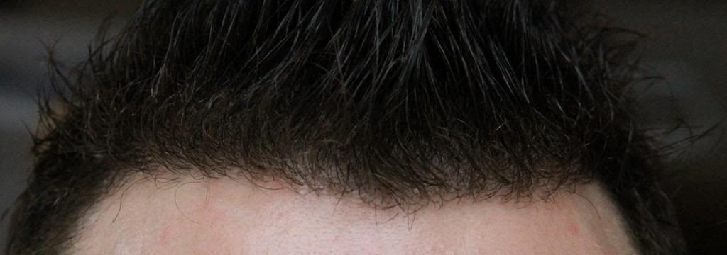 hair-transplant-1600-grafts (1)