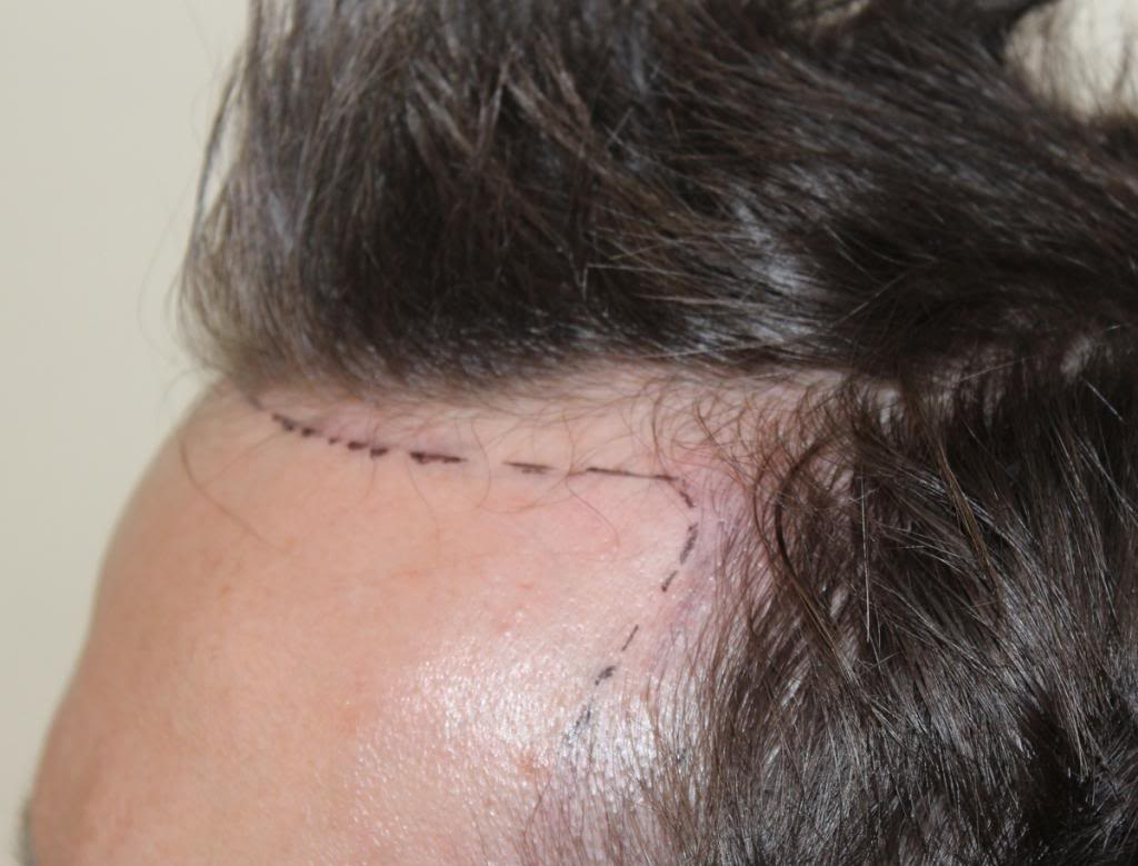hair-transplant-1600-grafts (10)