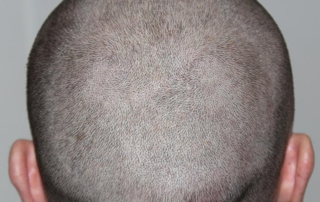 hair-transplant-1600-grafts (11)