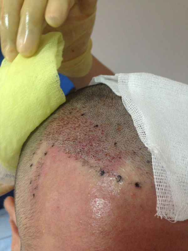 hair-transplant-1600-grafts (12)
