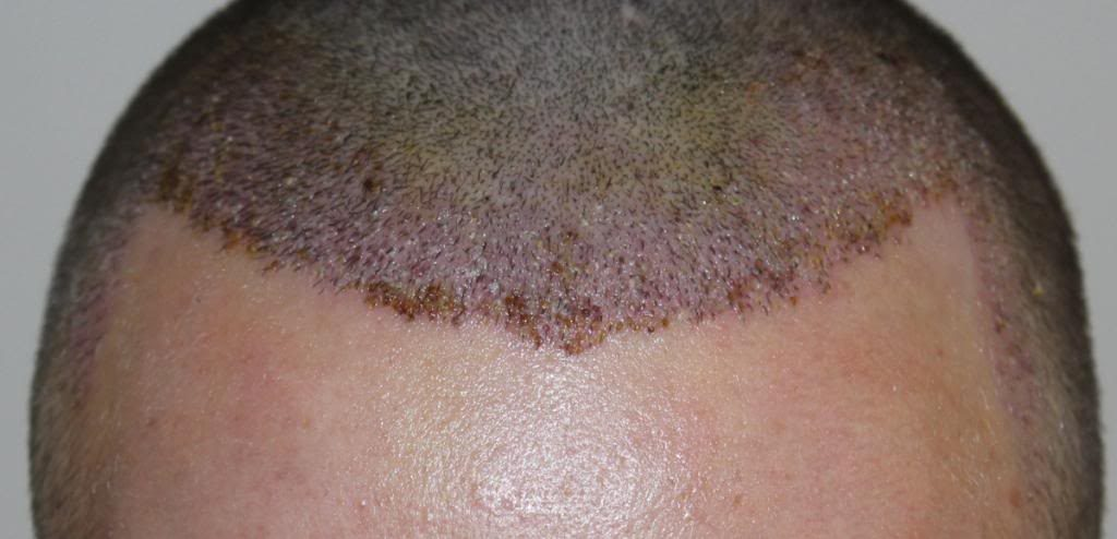 hair-transplant-1600-grafts (14)