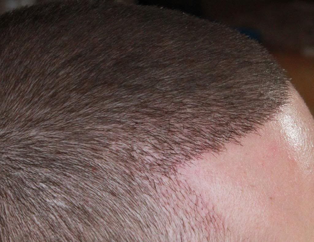 hair-transplant-1600-grafts (15)