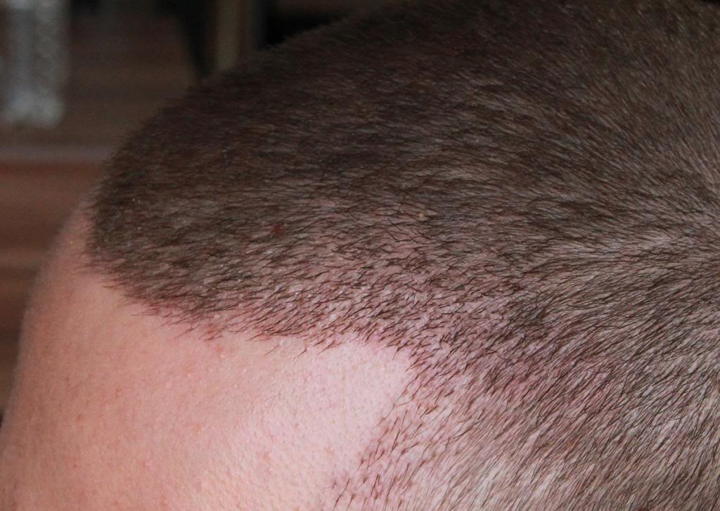 hair-transplant-1600-grafts (16)