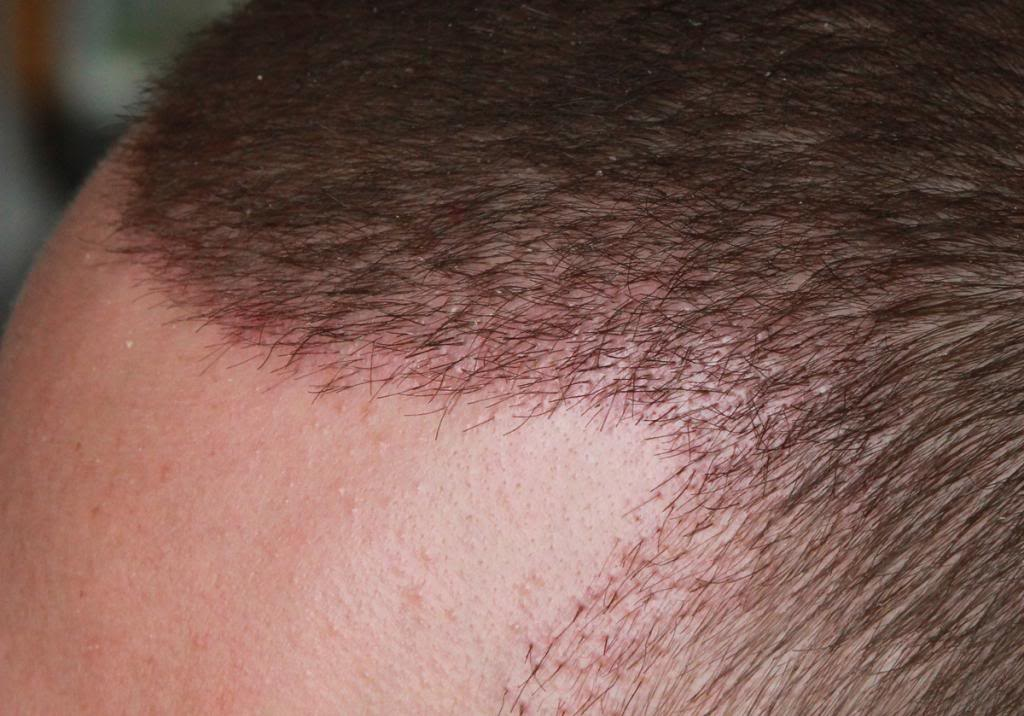 hair-transplant-1600-grafts (17)