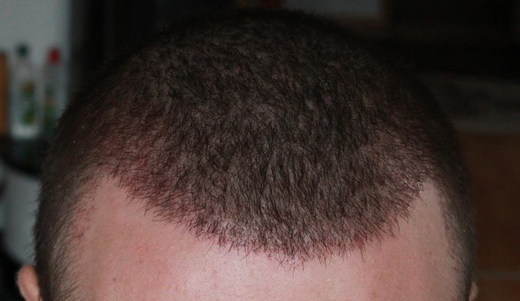 hair-transplant-1600-grafts (18)