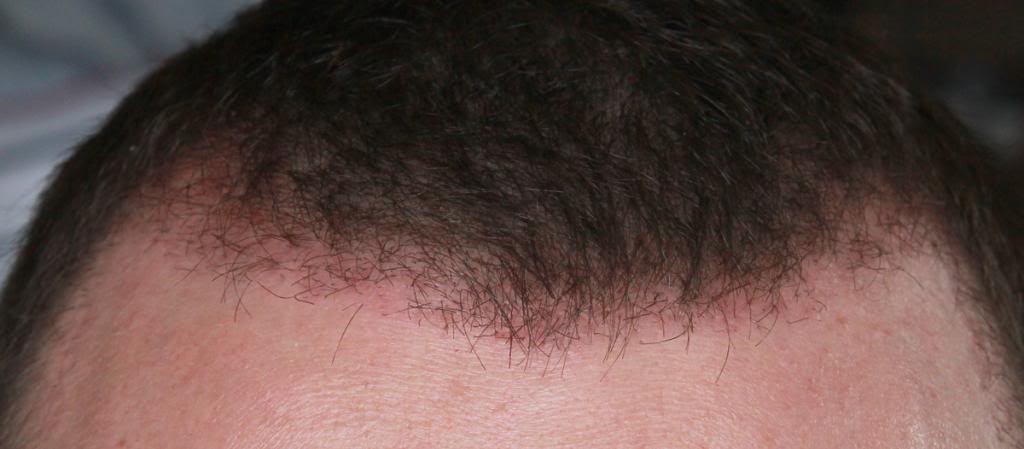 hair-transplant-1600-grafts (19)