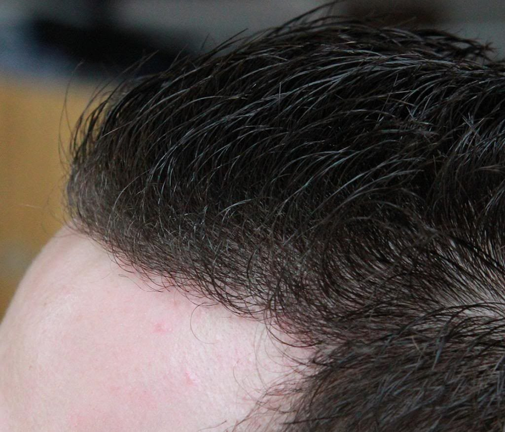 hair-transplant-1600-grafts (2)