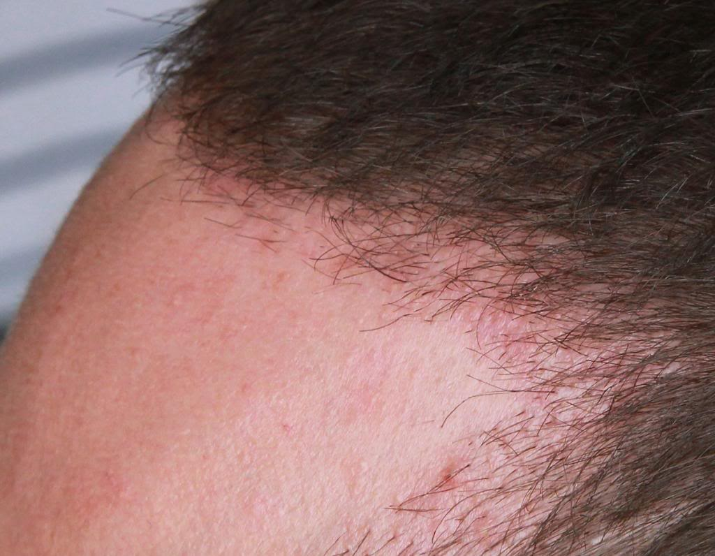 hair-transplant-1600-grafts (20)