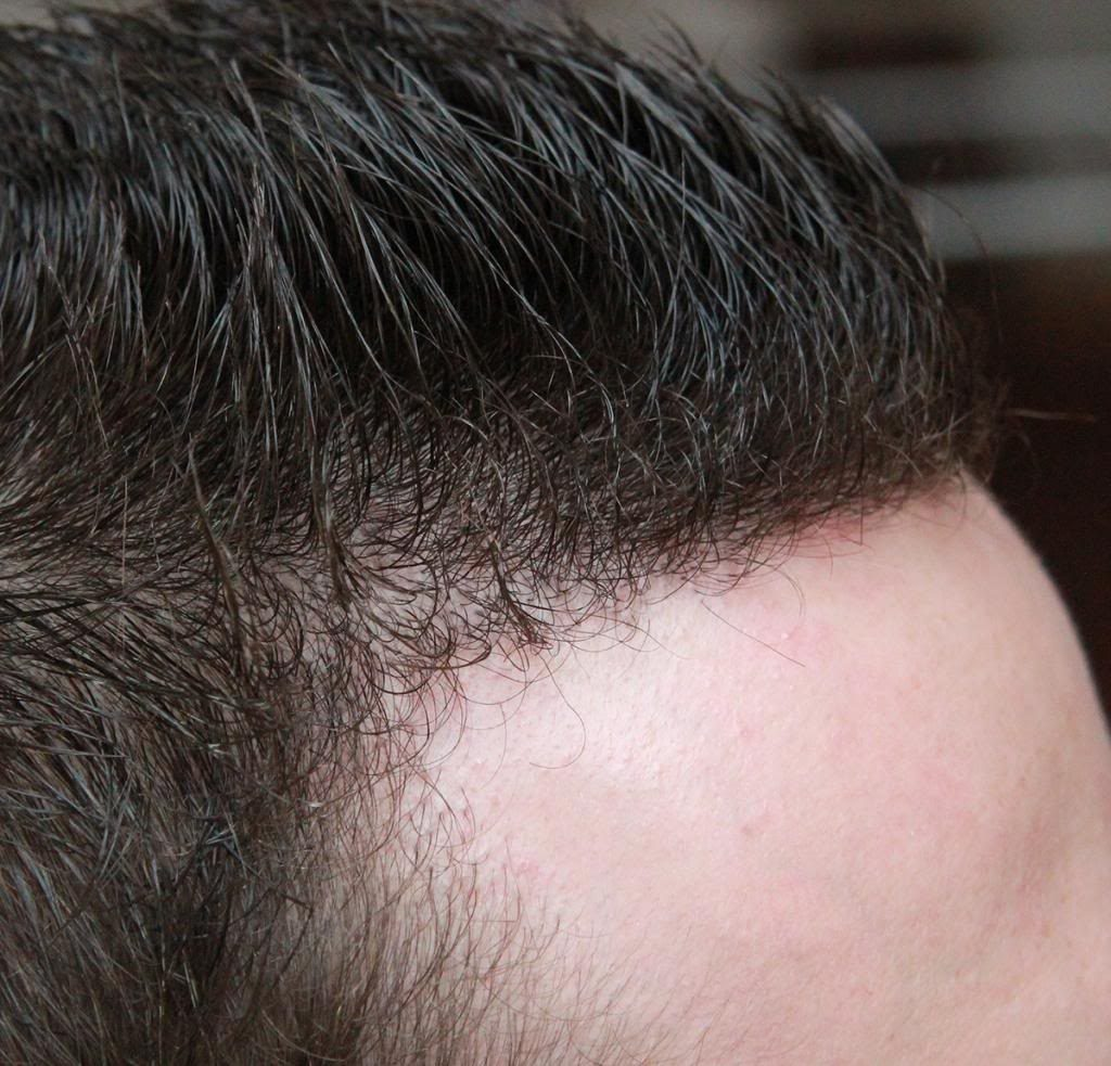 hair-transplant-1600-grafts (3)