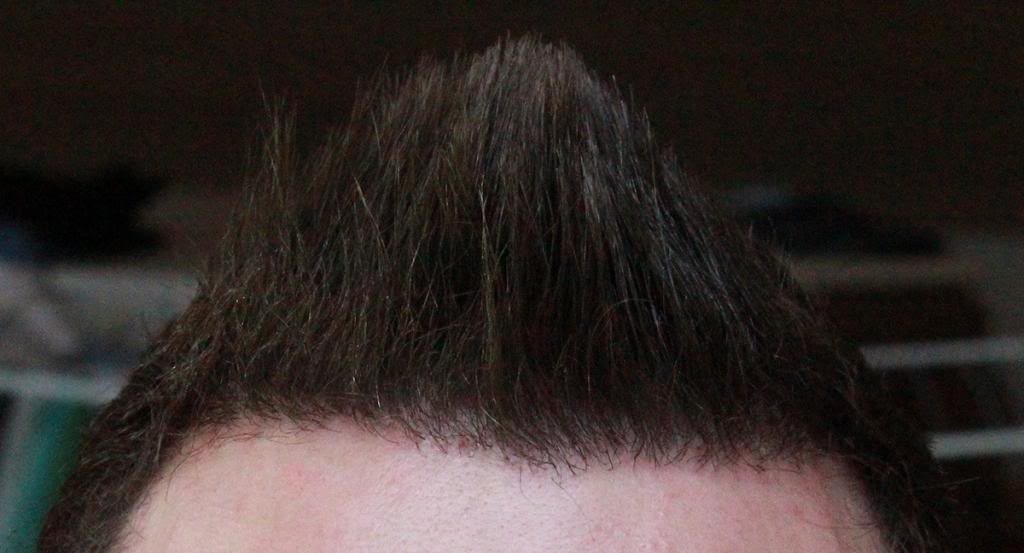 hair-transplant-1600-grafts (4)