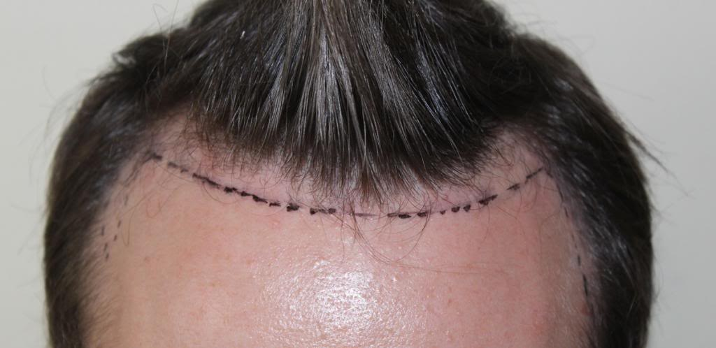 hair-transplant-1600-grafts (6)