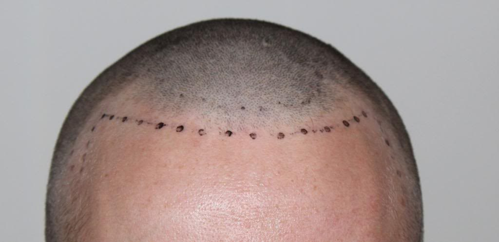 hair-transplant-1600-grafts (8)