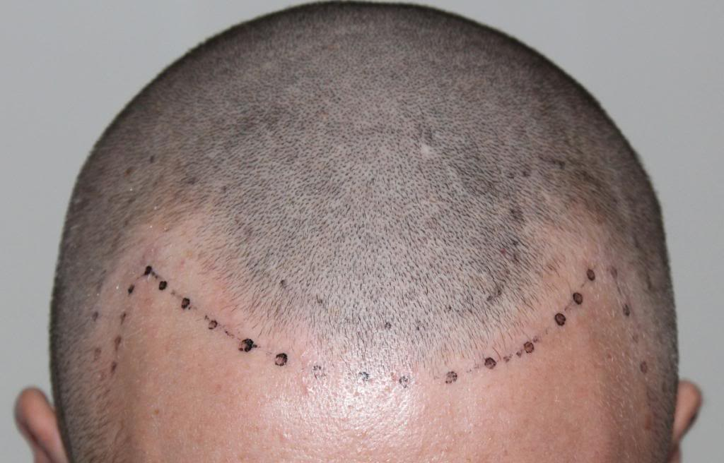 hair-transplant-1600-grafts (9)
