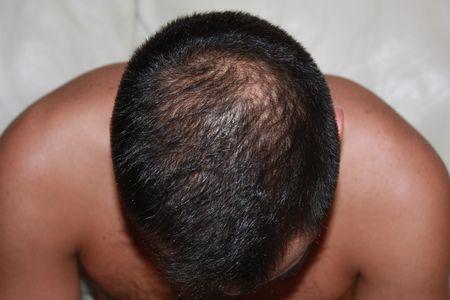hair-transplant-2000-grafts (1)