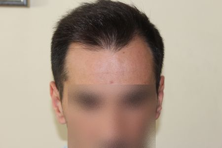 hair-transplant-2000-grafts (10)