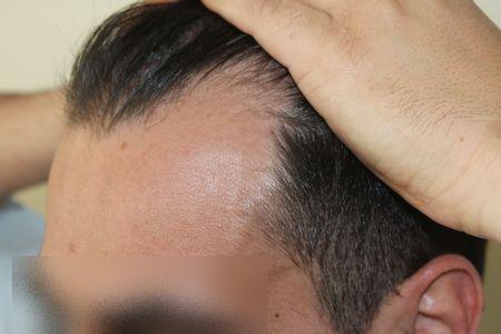 hair-transplant-2000-grafts (12)